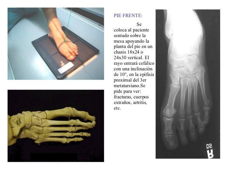 PIE FRENTE: Se coloca al paciente sentado sobre la mesa apoyando la planta del pie en un chasis 18x24 o 24x30 vertical. El...