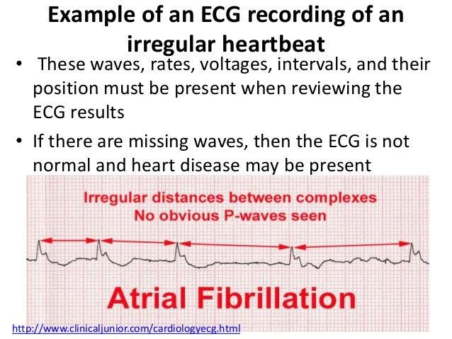 Electrocardiogram Ecg Or Ekg
