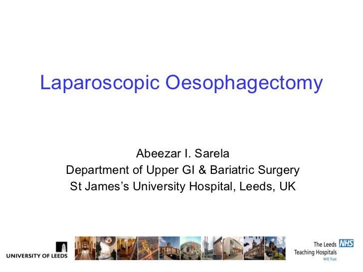 Laparoscopic Oesophagectomy Abeezar I. Sarela Department of Upper GI & Bariatric Surgery St James's University Hospital, L...