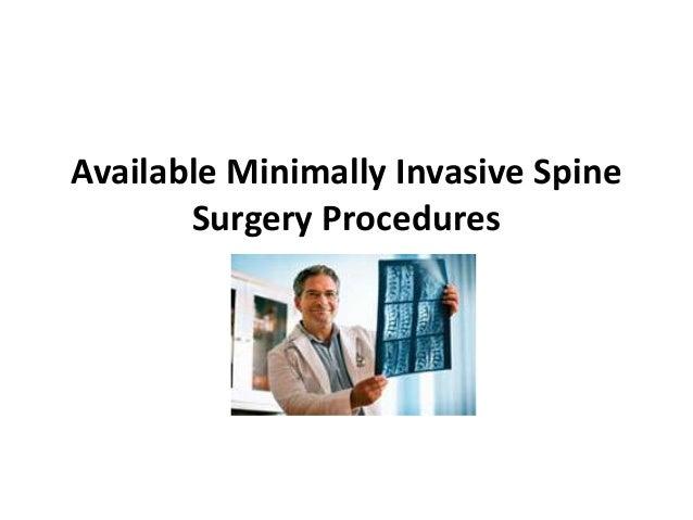Available Minimally Invasive Spine       Surgery Procedures