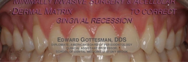 MINIMALLY INVASIVE SURGERY & ACELLULAR DERMAL MATRIX TO CORRECT GINGIVAL RECESSION EDWARD GOTTESMAN, DDS DIPLOMATE, AMERIC...