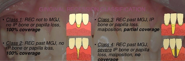4 types of tissue