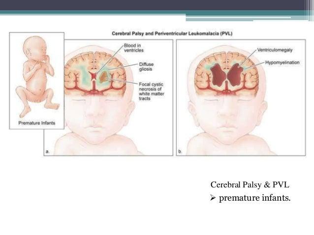 periventricular leukomalacia grading