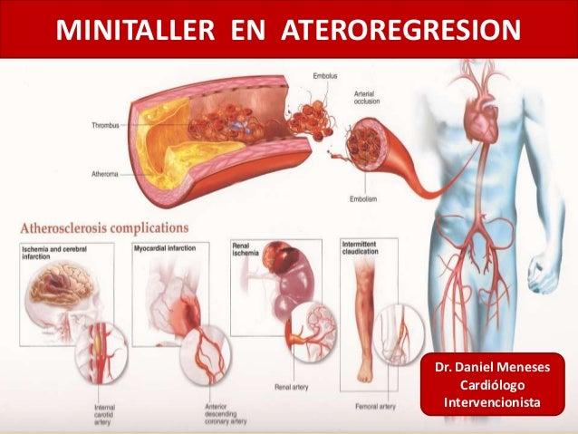 MINITALLER EN ATEROREGRESION Dr. Daniel Meneses Cardiólogo Intervencionista