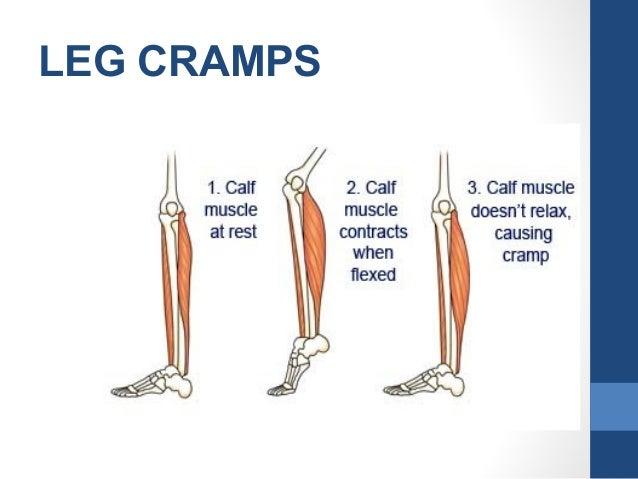 Minor discomfort of pregnancy cramps