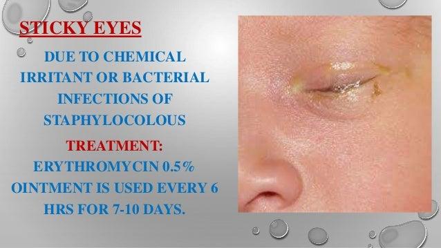 Newborn Baby Eye Discharge Yellow - newborn baby