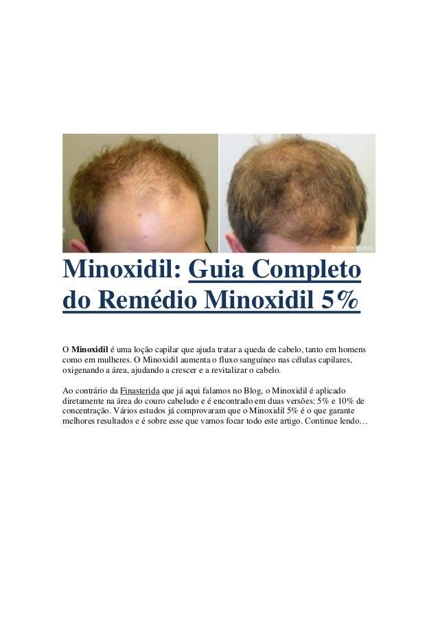 Minoxidil: Guia Completo do Remédio Minoxidil 5% O Minoxidil é uma loção capilar que ajuda tratar a queda de cabelo, tanto...