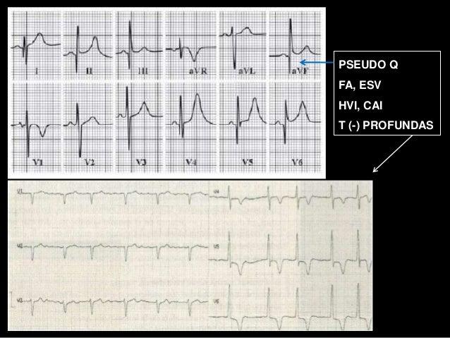 Miocardiopat 237 As