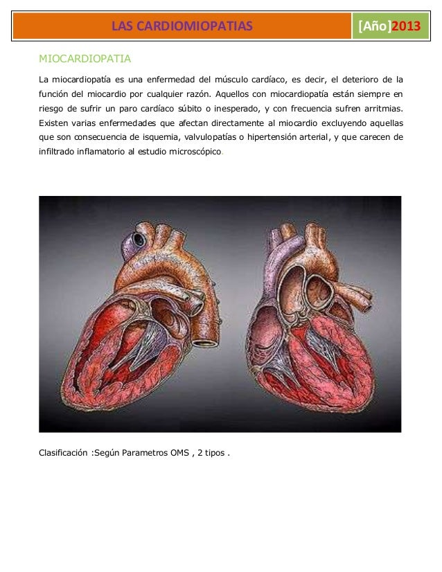 L LAS CARDIOMIOPATIAS [Año]2013MIOCARDIOPATIALa miocardiopatía es una enfermedad del músculo cardíaco, es decir, el deteri...