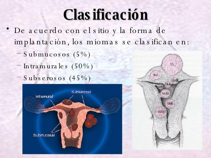 Clasificación <ul><li>De acuerdo con el sitio y la forma de implantación, los miomas se clasifican en: </li></ul><ul><ul><...