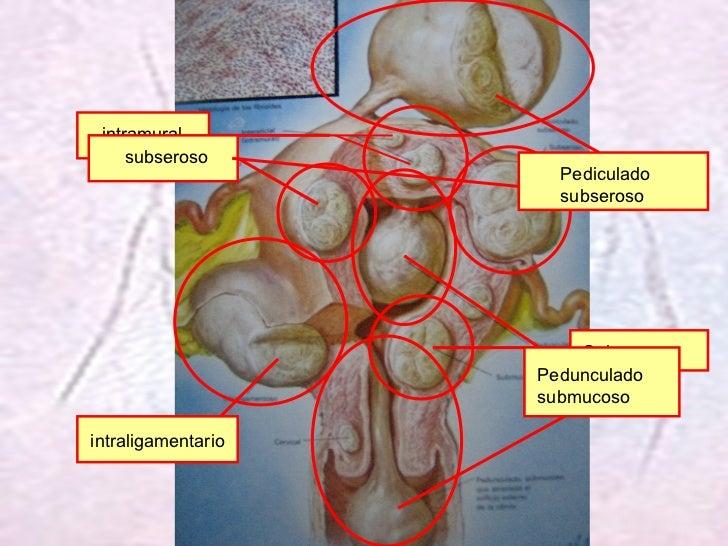 Submucoso Pedunculado submucoso intramural subseroso Pediculado subseroso intraligamentario