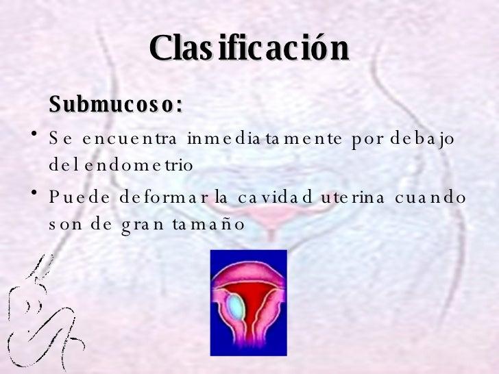 Clasificación <ul><li>Submucoso: </li></ul><ul><li>Se encuentra inmediatamente por debajo del endometrio </li></ul><ul><li...