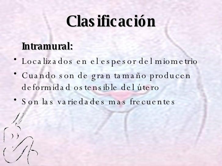 Clasificación <ul><li>Intramural: </li></ul><ul><li>Localizados en el espesor del miometrio </li></ul><ul><li>Cuando son d...