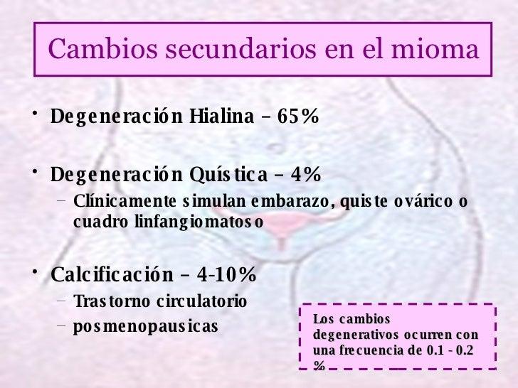 <ul><li>Degeneración Hialina – 65% </li></ul><ul><li>Degeneración Quística – 4% </li></ul><ul><ul><li>Clínicamente simulan...