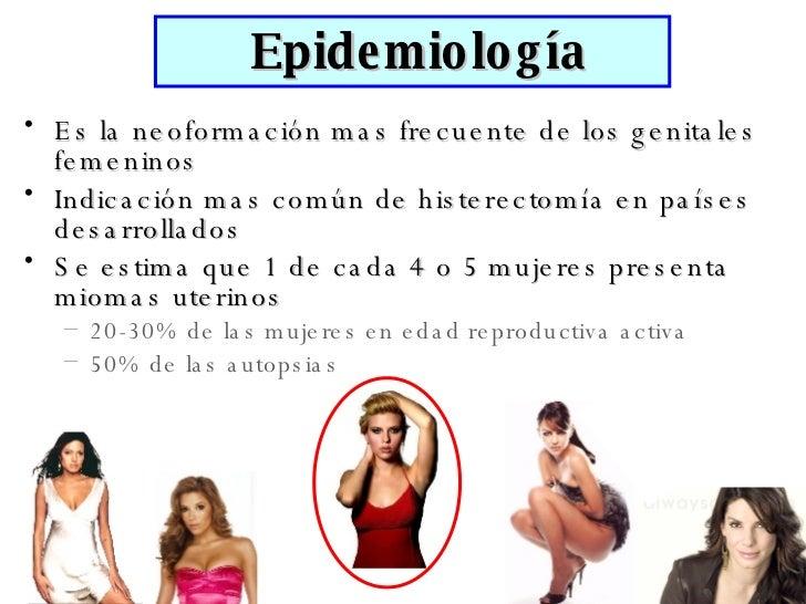 <ul><li>Es la neoformación mas frecuente de los genitales femeninos </li></ul><ul><li>Indicación mas común de histerectomí...