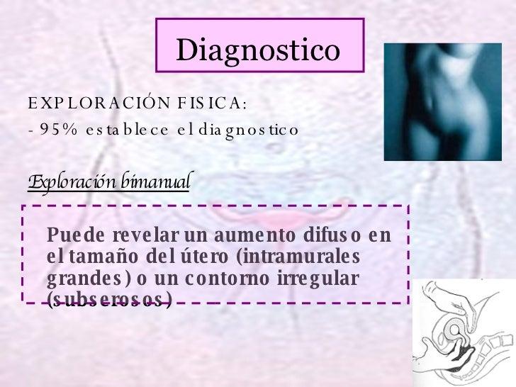 Diagnostico EXPLORACIÓN FISICA: - 95% establece el diagnostico Exploración bimanual Puede revelar un aumento difuso en el ...