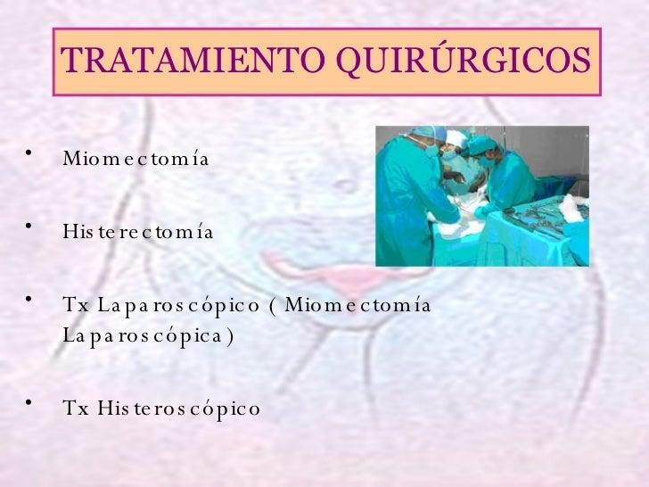 <ul><li>Miomectomía </li></ul><ul><li>Histerectomía </li></ul><ul><li>Tx Laparoscópico ( Miomectomía Laparoscópica) </li><...