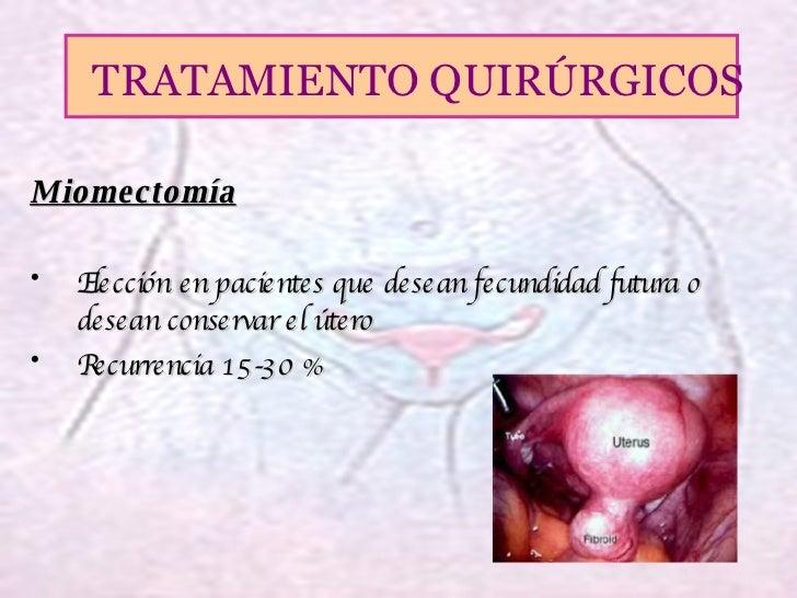 <ul><li>Miomectomía </li></ul><ul><li>Elección en pacientes que desean fecundidad futura o desean conservar el útero </li>...