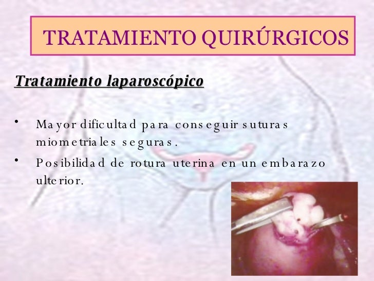 <ul><li>Tratamiento laparoscópico </li></ul><ul><li>Mayor dificultad para conseguir suturas miometriales seguras. </li></u...