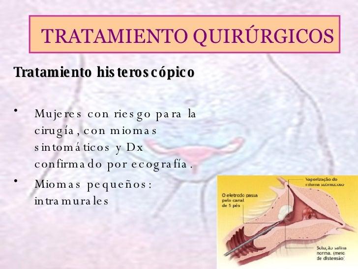 MIOMATOSIS UTERINA TRATAMIENTO EBOOK
