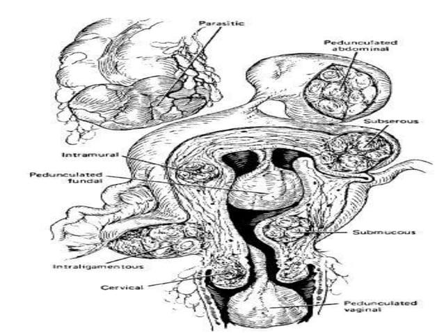 Miomas UTERINO Los miomas pueden sufrir cambios degenerativos como resultado de alteraciones circulatorias, infecciones o ...