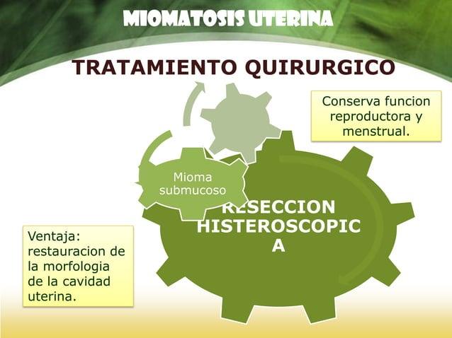 TRATAMIENTO QUIRURGICO HISTERECTOMIA VAGINAL Morbimortalida d nula Ventaja: Recuperacion inmediata. MIOMATOSIS UTERINA