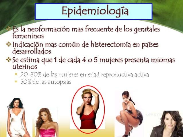  Los miomas constituyen tumos mas frecuente, con una prevalencia del 20 al 40% en mujeres mayores de 30 años.  Autores r...