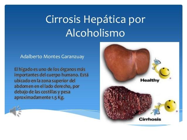 La codificación de alcohólico por la hipnosis