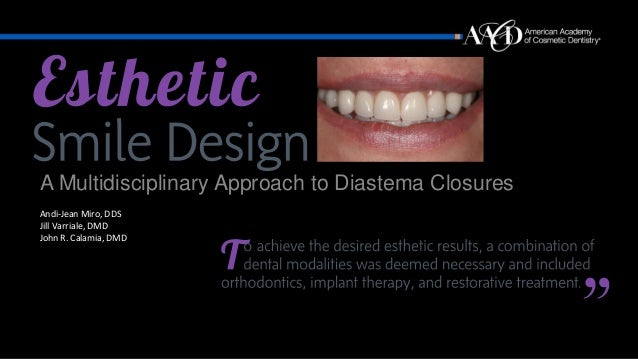 A Multidisciplinary Approach to Diastema Closures Andi-Jean Miro, DDS Jill Varriale, DMD John R. Calamia, DMD