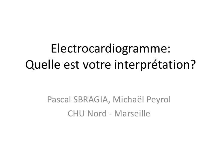 Electrocardiogramme:Quelle est votre interprétation?    Pascal SBRAGIA, Michaël Peyrol         CHU Nord - Marseille