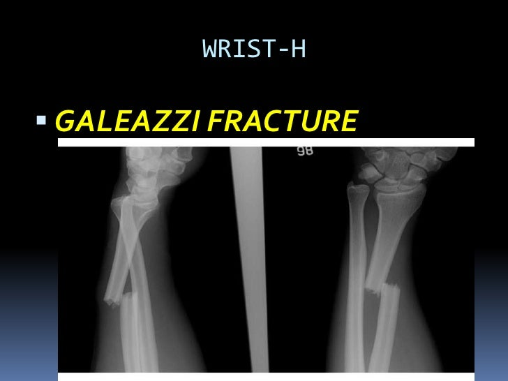 Missed fractures in Emergency Department