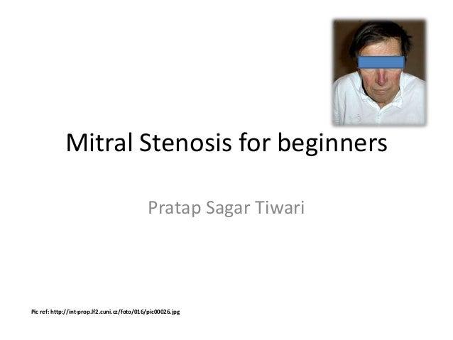 Mitral Stenosis for beginners Pratap Sagar Tiwari Pic ref: http://int-prop.lf2.cuni.cz/foto/016/pic00026.jpg