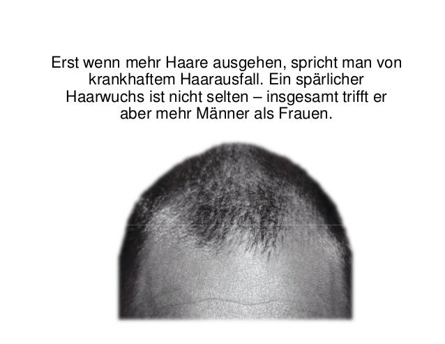 Welche Vitamine vom Haarausfall bei den Männern