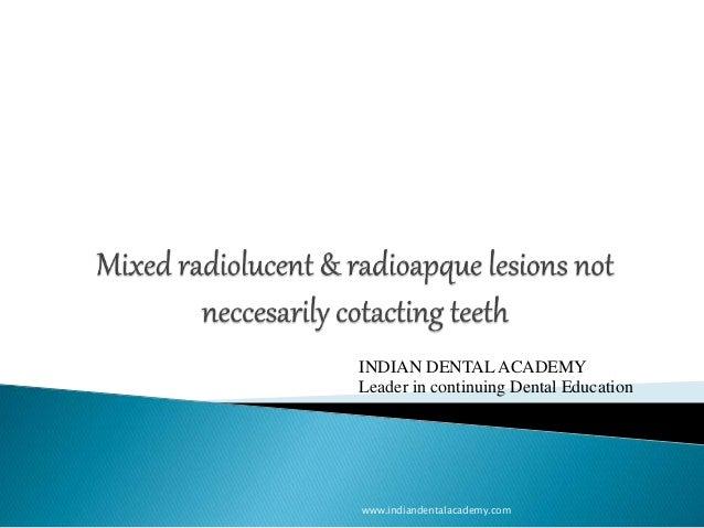 www.indiandentalacademy.com INDIAN DENTAL ACADEMY Leader in continuing Dental Education