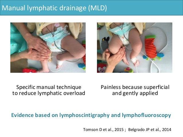 Roamabout 4102 manual lymphatic drainage