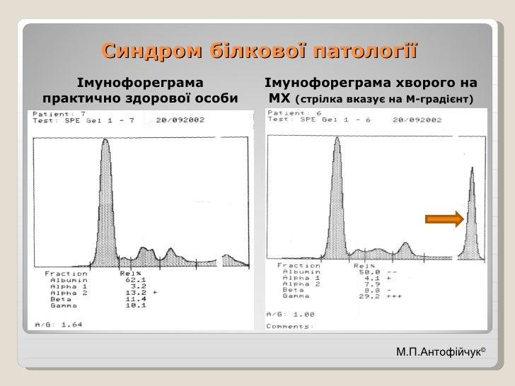 Синдром білкової патології <ul><li>Імунофореграма практично здорової особи </li></ul><ul><li>Імунофореграма хворого на МХ ...