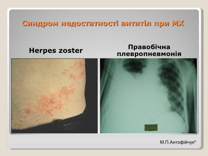 Синдром недостатності антитіл при МХ <ul><li>Herpes zoster </li></ul><ul><li>Правобічна плевропневмонія </li></ul>М.П.Анто...