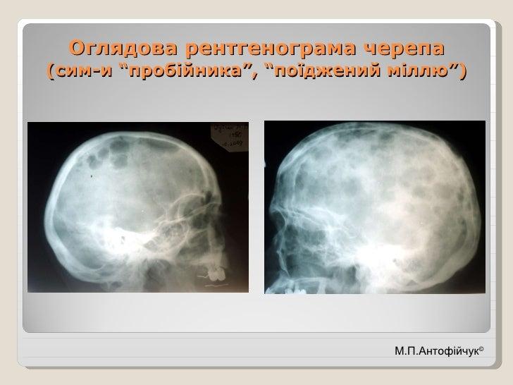 """Оглядова рентгенограма черепа (сим-и """"пробійника"""", """"поїджений міллю"""") М.П.Антофійчук ©"""