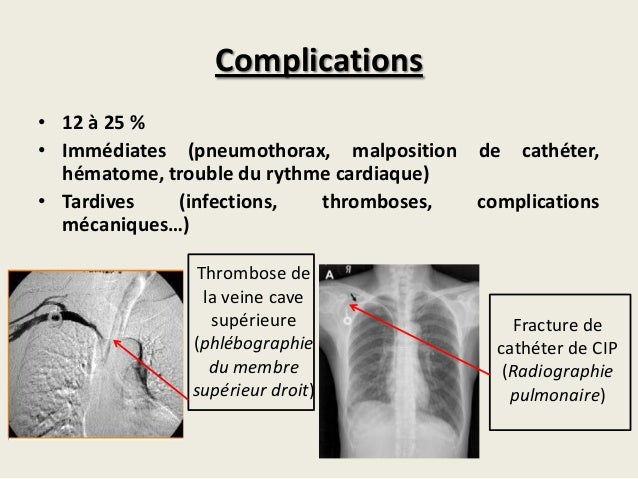 M moire cip f kayal - Infection chambre implantable ...