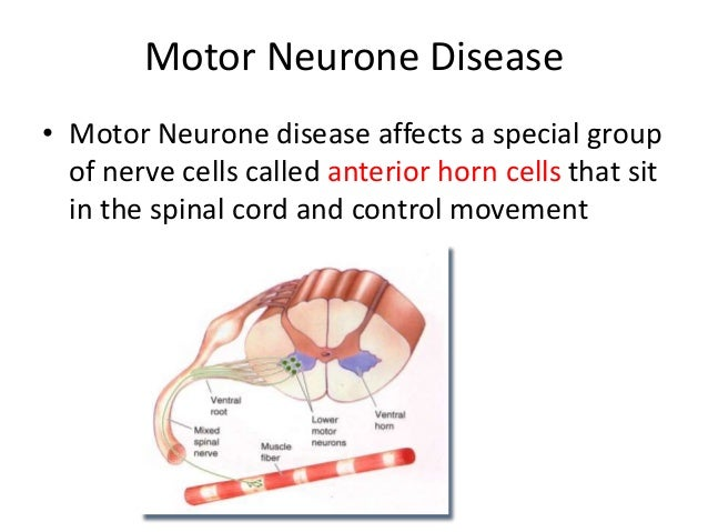 Mnd by otis talman for What are the first signs of motor neuron disease