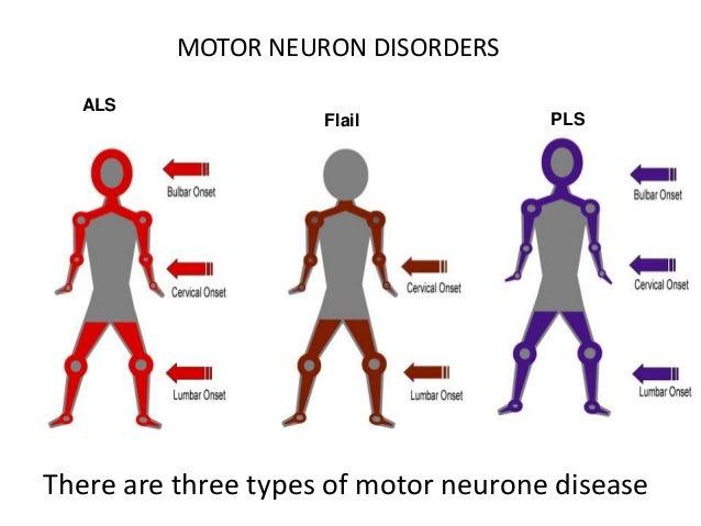 Mnd by otis talman for Lower motor neuron diseases