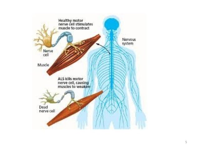 Motor Neuron Disease Spinal Muscular Dystrophy