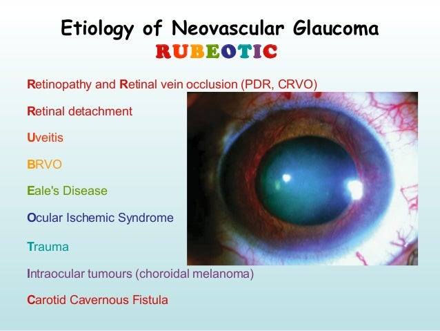 Etiology of Neovascular Glaucoma RUBEOTIC Retinopathy and Retinal vein occlusion (PDR, CRVO) Retinal detachment Uveitis BR...