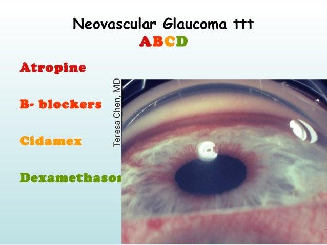 Neovascular Glaucoma ttt ABCD Atropine B- blockers Cidamex Dexamethason