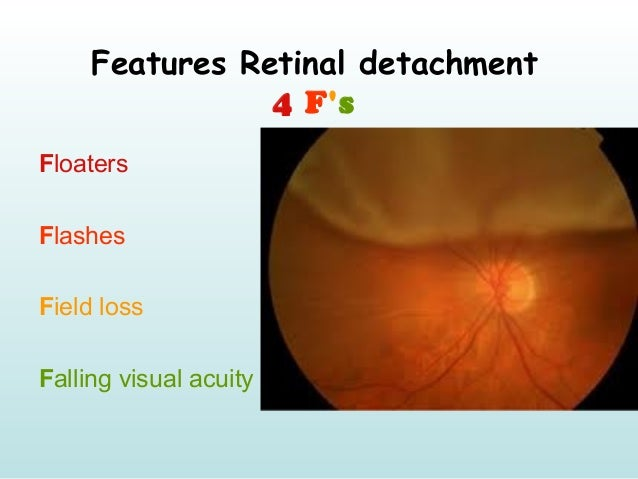 Features Retinal detachment 4 F's Floaters Flashes Field loss Falling visual acuity