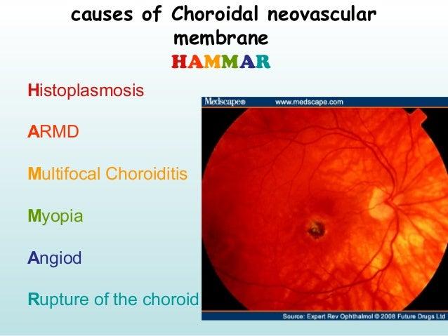 causes of Choroidal neovascular membrane HAMMAR Histoplasmosis ARMD Multifocal Choroiditis Myopia Angiod Rupture of the ch...