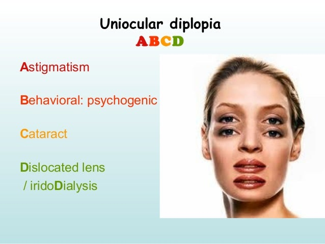 Uniocular diplopia ABCD Astigmatism Behavioral: psychogenic Cataract Dislocated lens / iridoDialysis