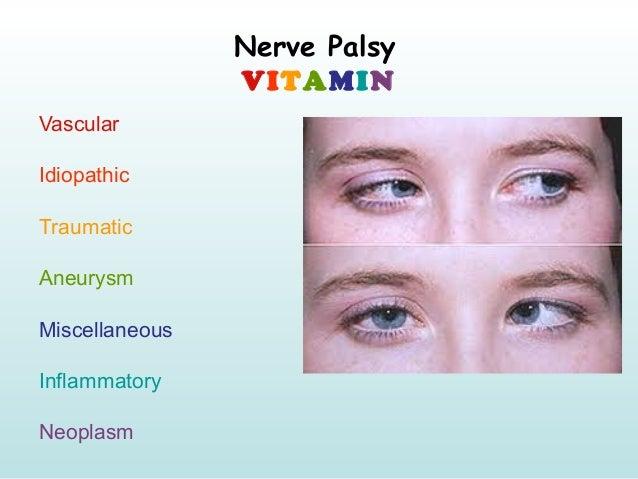 Nerve Palsy VITAMIN Vascular Idiopathic Traumatic Aneurysm Miscellaneous Inflammatory Neoplasm