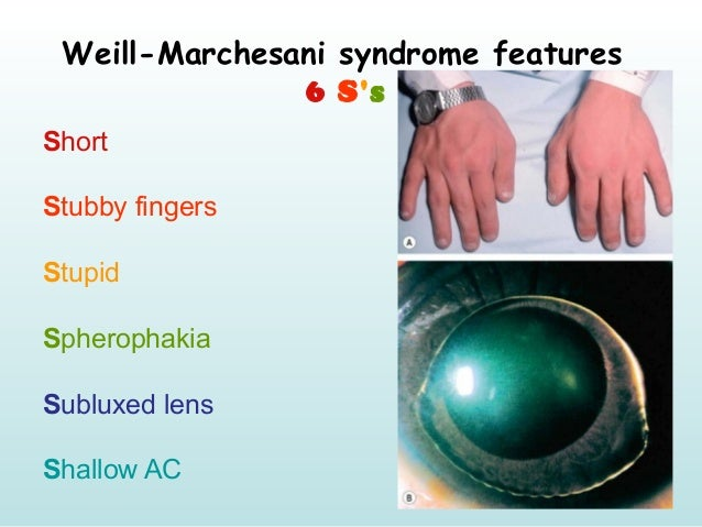 Weill-Marchesani syndrome features 6 S's Short Stubby fingers Stupid Spherophakia Subluxed lens Shallow AC