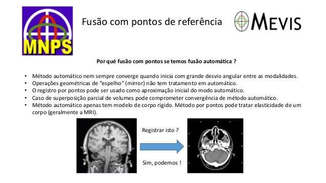 Fusão com pontos de referência  Por qué fusão com pontos se temos fusão automática ?  • Método automático nem sempre conve...